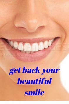 get back your beautiful smile - Teeth whitening Teeth Whitening That Works, Teeth Whitening Remedies, Teeth Whitening System, Natural Teeth Whitening, Get Whiter Teeth, Brush My Teeth, Smile Teeth, Healthy Teeth, Cosmetic Dentistry