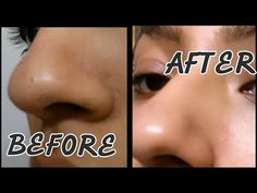 DIY Beauty | Toothbrush Blackhead Remover-BEST EVER?! \ خلطة لإزالة الرؤوس السوداء - YouTube