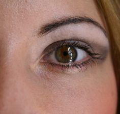 What are the side effects of cataract removal?