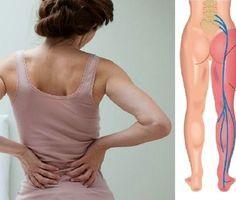 O nervo ciático normalmente começa na parte mais baixa das costas, então se espalha pelas nádegas e corre em direção à coxa e à pern As dores nesse nervo são bastante desagradáveis.