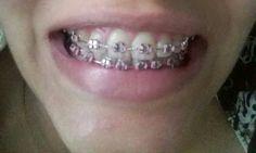 Frenos dentales
