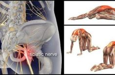 10 Stretches to Relieve Sciatica, Lower Back and Hip Pain!