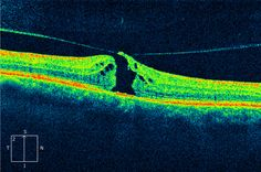 Macular Hole - you can see the vitreous traction that likely caused it