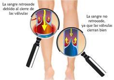 Cómo mejorar la circulación en brazos y piernas