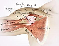 """Il trattamento della """"sindrome da conflitto subacromiale"""" della spalla è cambiato drasticamente negli ultimi dieci anni. La spiegazione anatomica dell'""""impingement"""" della cuffia dei rotatori non è sufficiente a giustificare la patologia. Una """"sindrome dolorosa subacromiale""""(SAPS), descrive la condizione migliore. Un gruppo di lavoro formato da una serie di società specializzate olandesi, unite dallaDutch Orthopedic Association, … Rotator Cuff, Arthritis, Biceps, Gym, Shoulder, Health, Fitness, Rest, Physical Therapy"""