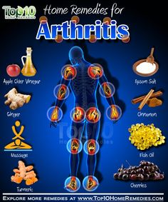 Natural Home Remedies Arthritis Remedies Hands Natural Cures Arthritis Home Remedies is just one of the things we cover in our post. We have also included early warning signs and the effects on the body. Signs Of Arthritis, Home Remedies For Arthritis, Arthritis Hands, Rheumatoid Arthritis Diet, Yoga For Arthritis, Top 10 Home Remedies, Natural Remedies For Arthritis, Types Of Arthritis, Arthritis Treatment