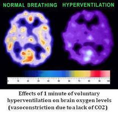 Effects of shallow breathing on the  brain O2 and sleep seizures