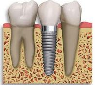 Are dental implants safe and effective?