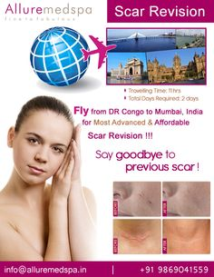 Scar Revision surgery is procedure to improve the appearance of scars by Celebrity Scar Revision  surgeon Dr. Milan Doshi. Fly to India for Scar Revision  surgery at affordable price/cost compare to Kinshasa, Lubumbashi,DR-CONGO at Alluremedspa, Mumbai, India.   For more info- http://Alluremedspa-dr-congo.com/