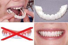 Smart Smile 2pcs Veneers Teeth, Dental Veneers, Misaligned Teeth, Missing Teeth, Gap Teeth, Perfect Smile, Shopping