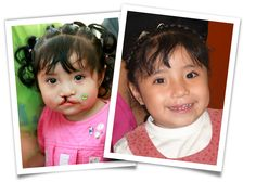Operation Smile provides free cleft palate repair surgeries, restoring smiles to the faces of children in developing nations worldwide.