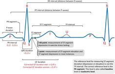x-EKG-kurvans-komponenter-2.jpg (1400×904)