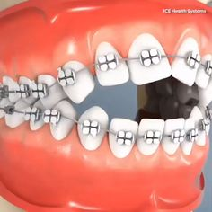 Avoid the Dentist: So you can do it with just 2 ingredients that you have at home Dental Braces, Teeth Braces, Dental Surgery, Dental Jokes, Dental Art, Dental Reconstruction, Dental Assistant Study, Braces Tips, Dental Videos