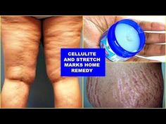 0832b3b3878c3 REDUCE CELLULITE AND STRETCH MARKS FAST AND EFFECTIVELY