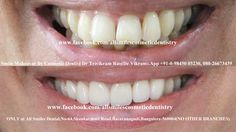 Smile makeovers by expert cosmetic dentist Dr Trivikram in Bangalore.Crowded teeth, chipped, stained, crooked teeth or gaps between teeth can be corrected without any braces/clips in days. Tooth Extraction Care, Tooth Extraction Aftercare, Dental Surgery, Dental Implants, Surgery Humor, Cosmetic Dentistry Cost, Wisdom Teeth Funny, Smile Dental, Dental