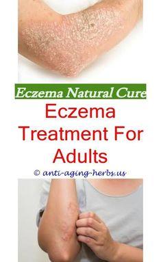 Eczema Rash On Back Of Knees My Website About Eczema Only