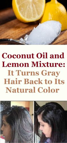 Gray hairs are usually a sign of getting old which is normal thing if the graying process starts on time. However, nowadays, premature graying has become very frequent occurrence as a result of various health conditions and poor nutrition. Coconut Oil Hair Treatment, Coconut Oil Hair Growth, Coconut Oil Hair Mask, Coconut Oil For Skin, Organic Coconut Oil, Grey Hair Remedies, Natural Remedies, Grey Hair Natural Remedy, Hair Growth Treatment