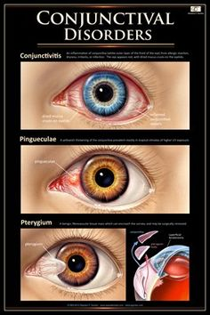 Pinguecula - benign, yellow spot of protein, fat, or calcium usually on nasal side vs Pterygium - fleshy growth toward nasal side often from sun, sand, wind, or dust exposure.