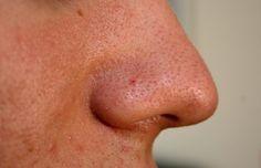 Pour éliminer les points noirs et impuretés, testez le sauna facial ! - Astuces de grand mère