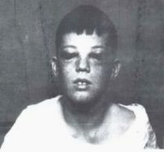 Boy 10 minutes after undergoing a frontal lobotomy (1963)
