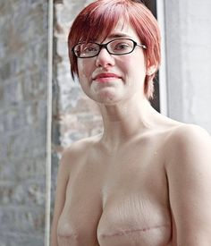 The SCAR Project is a series of large-scale portraits of young breast cancer survivors shot by fashion photographer David Jay. Primarily an awareness raising campaign, The SCAR Project puts a raw, unflinching face on early onset breast cancer while paying tribute to the courage and spirit of so many brave young women. http://www.thescarproject.org/