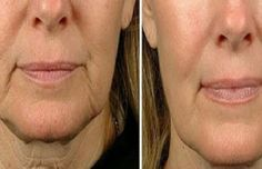 It's more than possible to give yourself a non-surgical facelift yielded by stimulating your face with facial reflexology and face gymnastics. Facial toning exercises lift the face skin with great results for a long-term energy facelift without surgery. Face Skin, Face And Body, Beauty Secrets, Beauty Hacks, Face Care, Skin Care, Beauty Skin, Hair Beauty, Anti Aging Creme