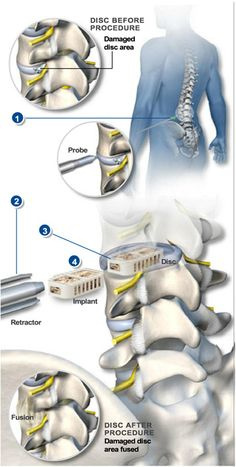 XLIF – Lateral Lumbar Interbody Fusion - Unlike traditional back surgery, XLIF is performed through the patient's side. By entering this way, major muscles of the back are avoided. This minimally-invasive procedure is generally used to treat leg or back pain caused by degenerative disc disease. #spine #health  http://www.southeasternspine.com/procedures-treatments/xlif-lateral-lumbar-interbody-fusion/