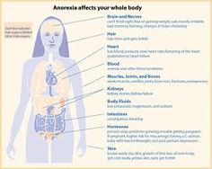 How anorexia affects your body.