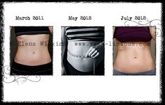 Body After A Baby on Pinterest | After Baby, Body After Baby and ...
