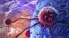 Dos tercios de las mutaciones genéticas que causan cáncer son debidas al azar