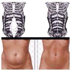 Exercises for Diastasis Recti | Healthy Range at Top Blogs