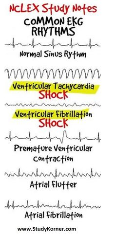 EKG/ECG for Nursing Students: How To Read An Electrocardiogram Following the steps below will allow ease with interpretation of arrhythmias. Analyzing strips in this order and reviewing these 5 aspects will allow for correct identification of cardiac rhythms. Rate P Waves P:QRS QRS PR Interval Rate What is the ventricular rate? On a six second … Continue reading EKG/ECG for Nursing Students: How To Read An Electrocardiogram Med Surg Nursing, Cardiac Nursing, Pharmacology Nursing, Nursing Degree, Nclex, Ekg Interpretation, Nursing School Notes, Nursing Schools, Nursing Students