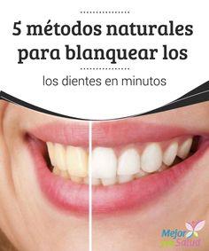 5 métodos naturales para blanquear los dientes en minutos  Las variaciones de color en algunas áreas de los dientes son un problema estético que se produce por el desgaste del esmalte dental.
