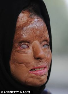 Acid attacks against women such as Sonali Mukherjee are said to be on the rise in India