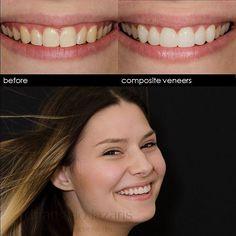 Sylvia's sly smile..#teethwhitening #compositeveneers #smiledesign #smile #cosmeticdentistry #cosmeticdentist #sydneycosmeticdentist #smiledesignsydney #cosmeticdentistrysydney Composite Veneers, Smile Design, Cosmetic Dentistry, Teeth Whitening, Cosmetics, Instagram Posts, Faces, Tooth Bleaching