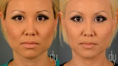 Yoo, discusses BOTOX® for masseter reduction. Also known as jaw reduction with BOTOX®, or the V-line procedure. Plastic Surgery Video, Botox Before And After, Eyelid Lift, Lymphatic Drainage Massage, Best Face Mask, Liposuction, Jawline, Health And Beauty Tips, Mascaras