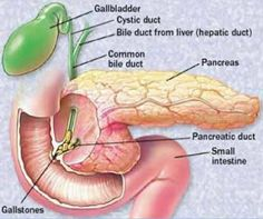 How To Cure Pancreatitis