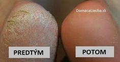 Sú vaše chodidlá suché, tvrdé či dokonca s popraskanou pokožkou? Tak vyskúšajte túto jednoduchú kúru. Jej výsledkom budete milo prekvapí.