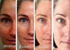 I love using Reverse!! Look at this woman's results!! jordanascher.myrandf.com
