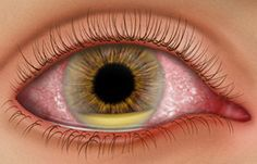 What symptoms suggest an eye infection? AllAboutVision.com