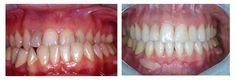 Casi clinici ortodontici Chirurgia Ortognatica/Classe 3 scheletrica http://www.studiodentisticobalestro.com/2016/06/chirurgia-ortognatica-classe-3_7.html