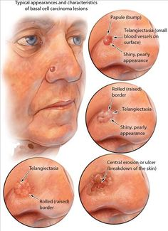 Basal cell carcinoma (Skin Cancer): Symptoms, Diagnosis and Treatment Basal cell carcinoma is a form of skin cancer that develops in the basal cells- a kind of cell that is responsible for making new skin cells when the old ones die. Nursing Tips, Nursing Notes, Dermatology Nurse, Examen Clinique, Basal Cell Carcinoma, Family Nurse Practitioner, Medical Information, 40 Years, Nurses