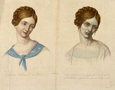 "Twenty-three year old Viennese woman, before and after contracting cholera. One mid-19th century report describes cholera victims who were ""one minute warm, palpitating, human organisms - the next a sort of galvanized corpse, with icy breath, stopped pulse and blood congealed - blue, shrivelled up, convulsed"". Cholera causes profuse vomiting and diarrhoea, dehydrating the body so rapidly and severely that the blood thickens and the skin becomes deathlike and blue."