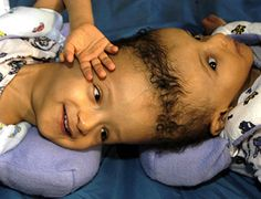 Inseparable: Ten Years Joined At The Head: Joined At The Head: Famous Craniopagus Twins Gender Identity Disorder, Dr Alexander, Conjoined Twins, Young Life, Good Morning America, Twin Girls, Normal Life, Cbs News, Country Singers
