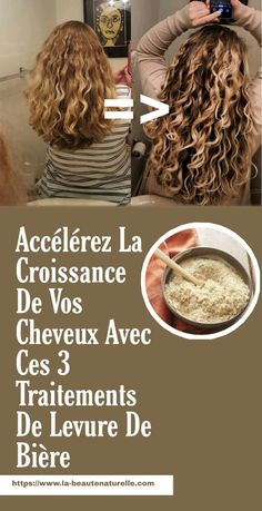 Speed up your hair growth with these 3 brewer's yeast treatments Grow Long Hair, Grow Hair, Bob Braids, Natural Hair Styles, Long Hair Styles, About Hair, Curled Hairstyles, Hairline, Hair Growth