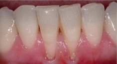 regrow gumline - Have great hygene , brush and floss regularly but gums receding. receding gums not always from gum disease, could be vitamin def. Gum Health, Teeth Health, Healthy Teeth, Dental Health, Dental Care, Oral Health, Dental Hygiene, Health Tips, Reverse Receding Gums