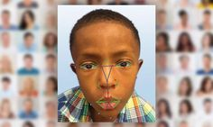 Researchers have promised a quick diagnosis, where facial recognition software determines who suffers from a genetic disorder that is hard to pinpoint. Will we be able to diagnose rare genetic disorders one day as simple as clicking a selfie? Here is what the new study suggests: Scientist have successfully used facial recognition software which is similar to that found in facebook and airports for diagnosis of a rare genetic disease known as 22q11.2 deletion syndrome. 22q11.2 also known as…