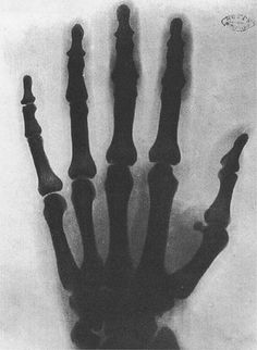 One of the earliest x-ray photographs, this one of Tesla's hand.