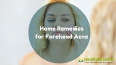 How to Get Rid Of Forehead Acne (Pimples on Forehead): 10 Remedies You Can Try At Home - Healthynews24
