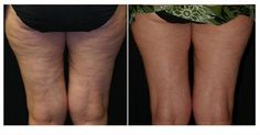 acoustic wave therapy for cellulite and skin tightening